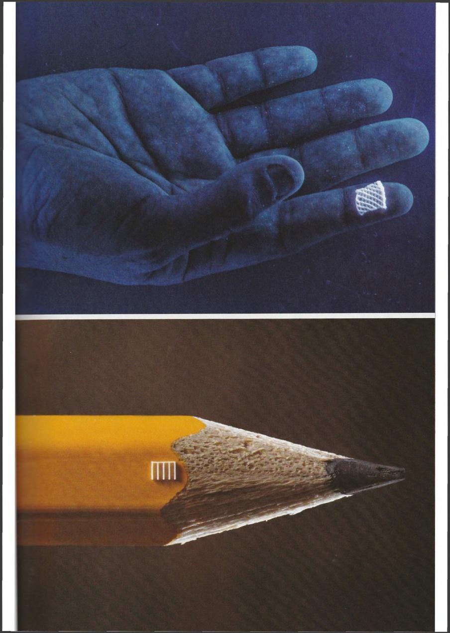 a kéz deformáló artrózisának kezelése